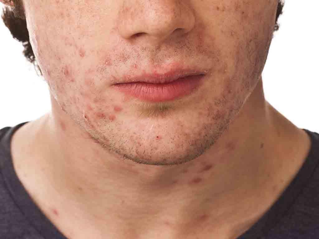 Как избавится от воспалений на лице в домашних условиях
