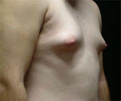 gonzalez-gynecomastia-1b